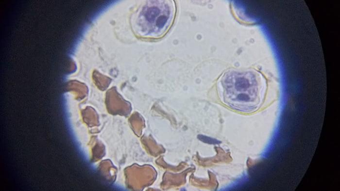 maxlapterの顕微鏡 2000倍「WR851-2」で撮影した試料②「Pine Young Staminate Cone」拡大写真3:1000倍